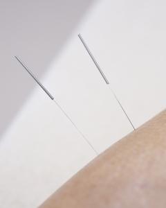 Acupunctuur in Amsterdam | Fysiotherapie Le Loux